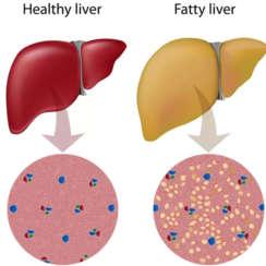 Fatty Liver/ Hepatic Steatosis – අක්මාවේ මේද තැන්පත්වීම