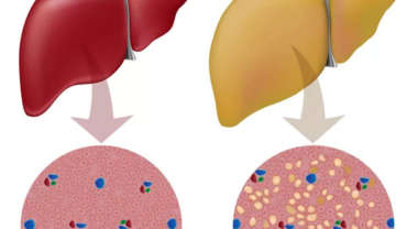 A healthy liver and fatty liver side by side