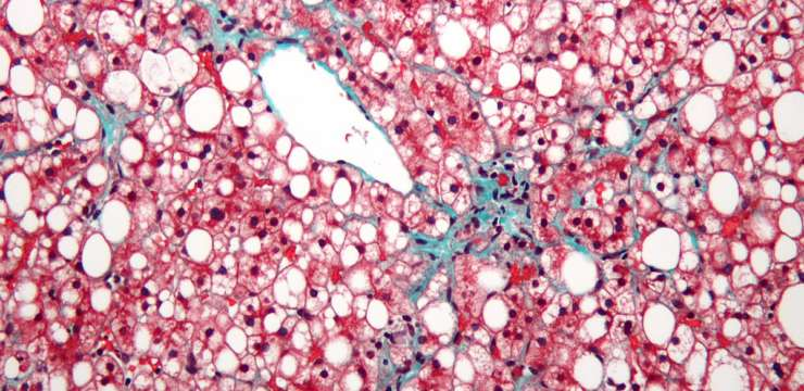 Non-alcoholic_fatty_liver_disease1